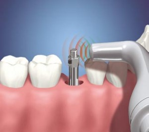 Fotos de Um Implante Dentário