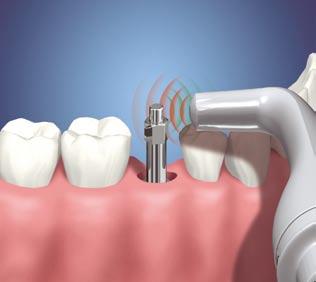 Fotos-de-Um-Implante-Dentário