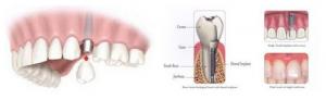 Clínica de Implantes dentários em Santo André - SP
