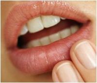 8 Remédios caseiros para Herpes Labial