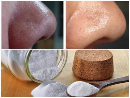 bicarbonato de sodio pra pele nariz
