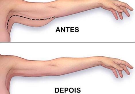 gordura do tchauzinho secar o braço