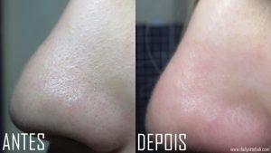Veja como remover cravos do nariz usando água, sal e limão